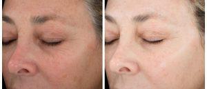 dallas chemical facial peel