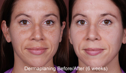 dermaplaning dallas facial treatment
