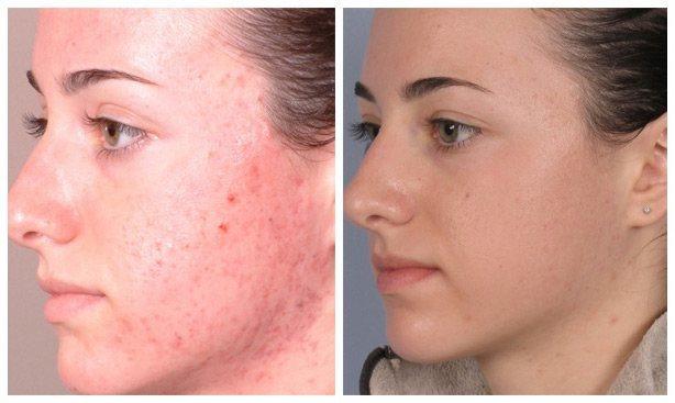 microdermabrasion dallas facial
