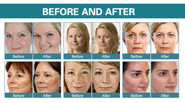 oxygen facial before after